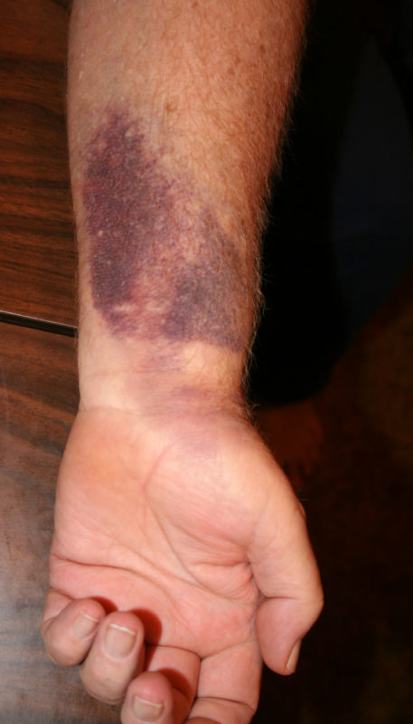 A bruised arm of an adult white male